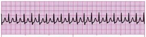 Identifying and Treating Supraventricular Tachycardia (SVT)