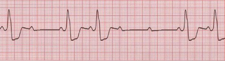 Identifying and Treating Second-Degree AV Heart Block Type II