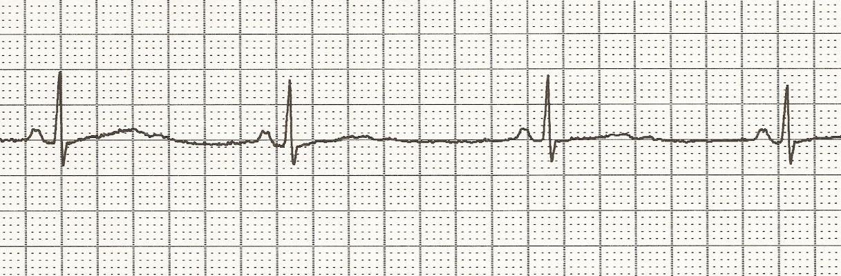 Bradycardia: Quick Stu...
