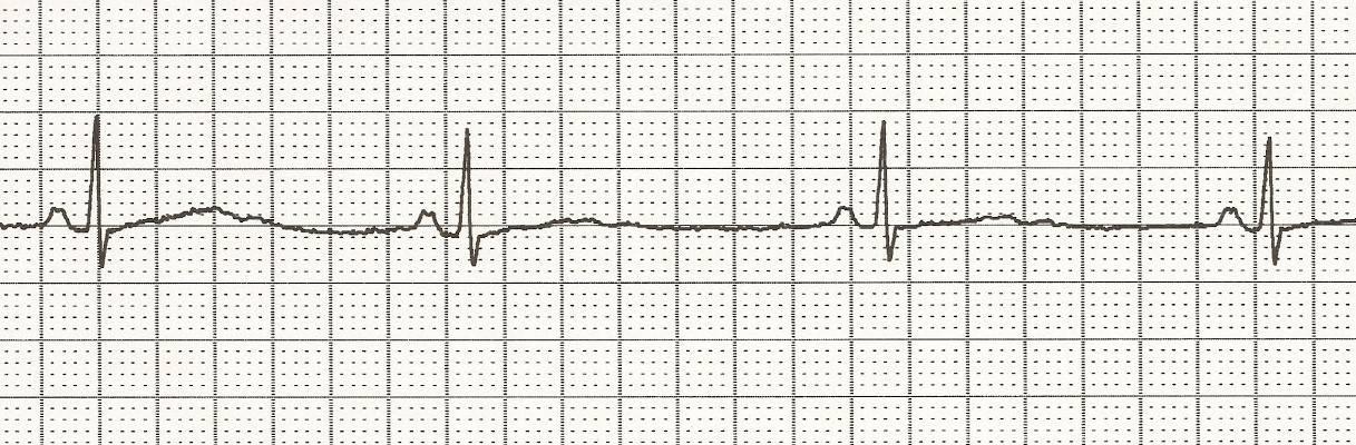 Bradycardia rhythm on an ECG strip